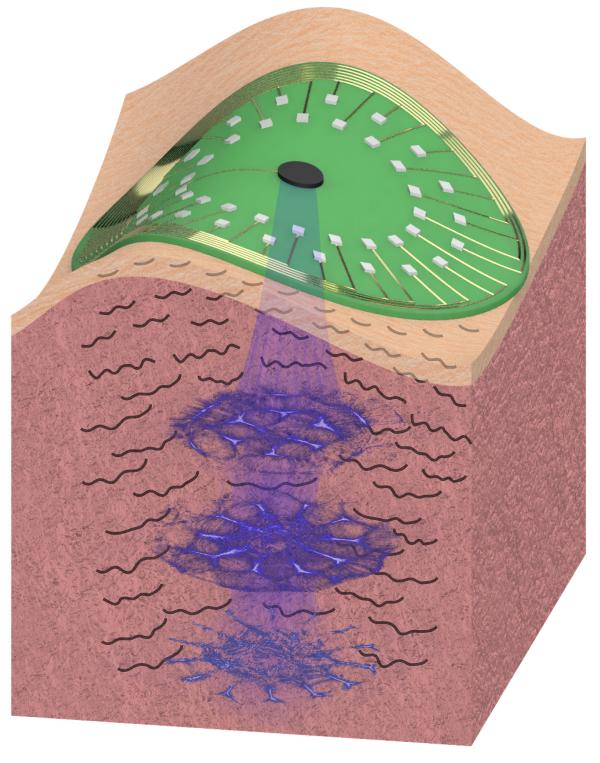 optical-imaging-skin.png